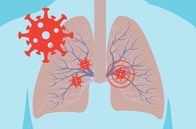 SARS-CoV-2 or nCOVID19: Why Breathing issues